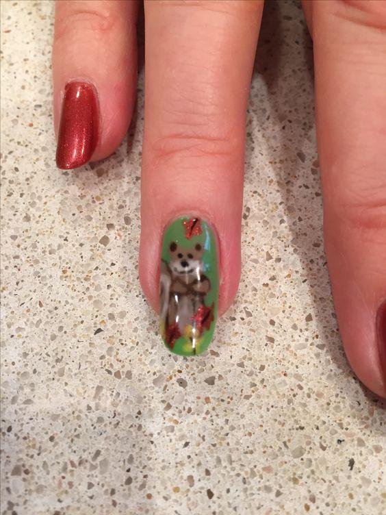 Белка на ногтях (21)